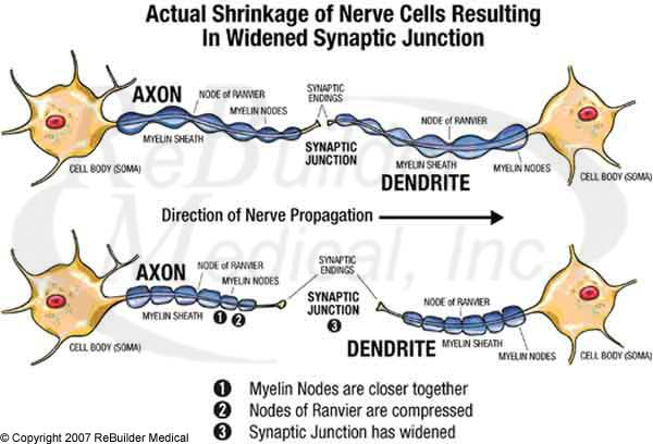 Actual shrinkage of Nerve Cells Resulting in Widened Synaptic Junction